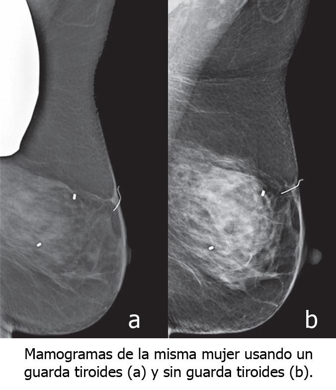 mamogramas
