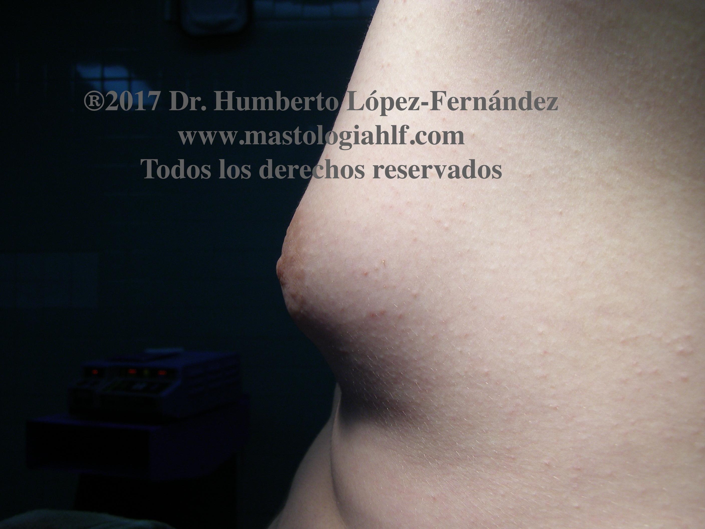 Ginecomastia, el crecimiento mamario en el hombre